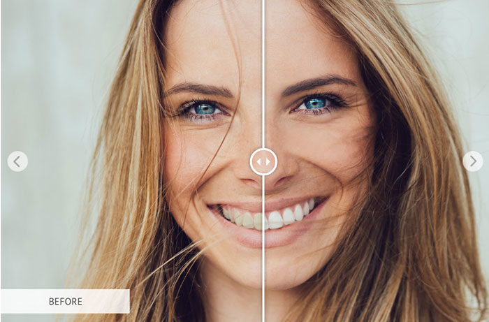 whiteningteeth-700x461 Photoshop actions for portraits that you can download now